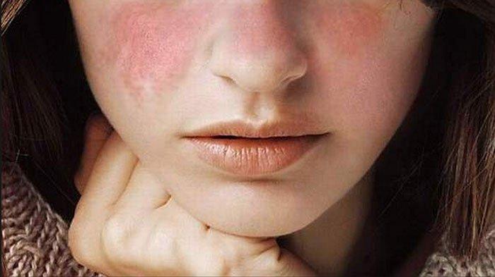 Sakit Lupus – Kenali Sekarang Sebelum Terlambat
