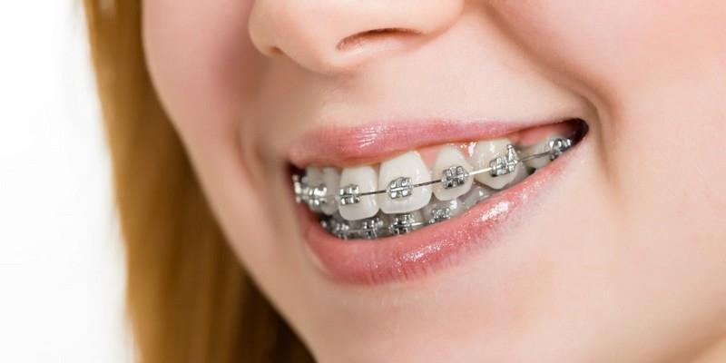 Yang Perlu Diketahui Sebelum Pasang Kawat Gigi